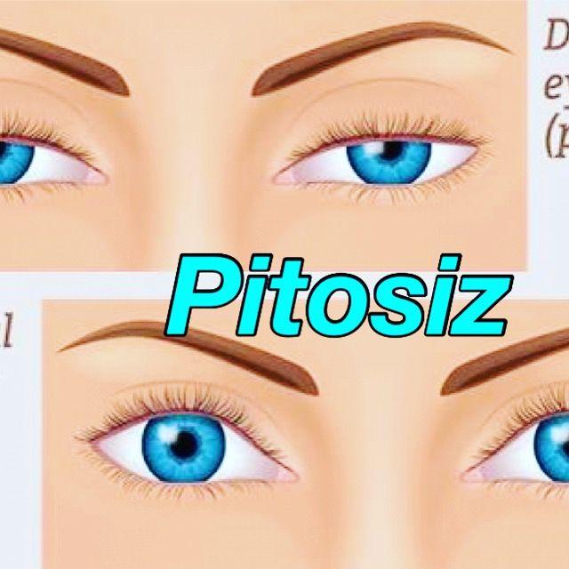 Üst göz kapağının olması gereken seviyesinin altında olmasına pitosiz( üst göz kapağı düşüklüğü)denir. Doğuştan tek veya iki taraflı olabilir. Yaşlanma ile oluşan pitosiz toplumda daha sık görülmektedir. Her iki tipinde tedavisi cerrahidir.