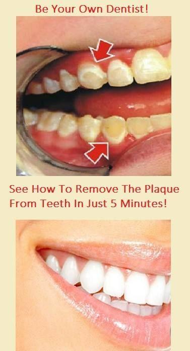 Remove plaque