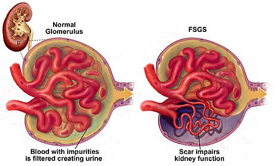 FSGS = most common cause of nephrotic syndrome in African Americans. Starts with a scar (sclerosis) that affects whatever portion of the glomerulus.