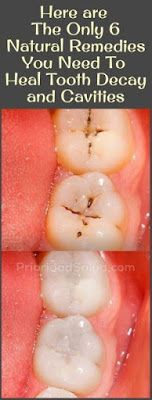 The Only 6 Natural Remedies You Need To Heal Tooth Decay and Cavities