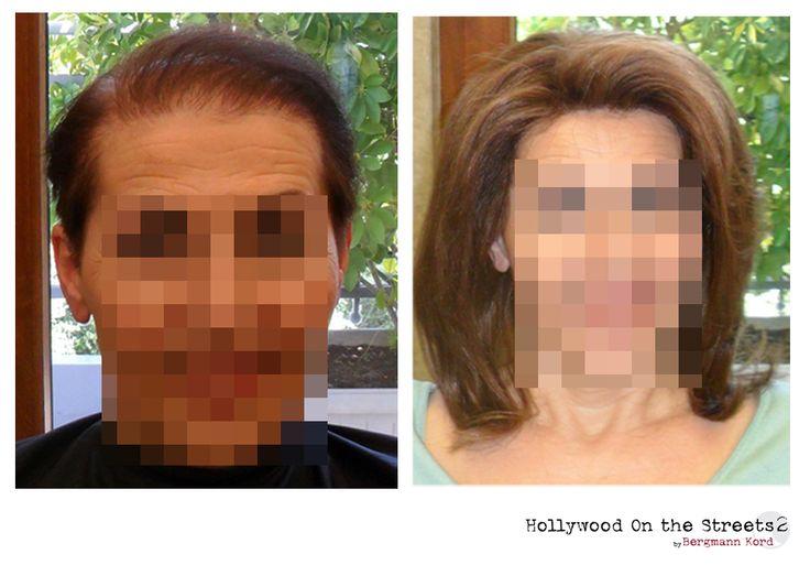 www.hos2.gr Αποκατάσταση μαλλιών μετά τις χημειοθεραπείες. Εικόνες με τα αποτελέσματα.