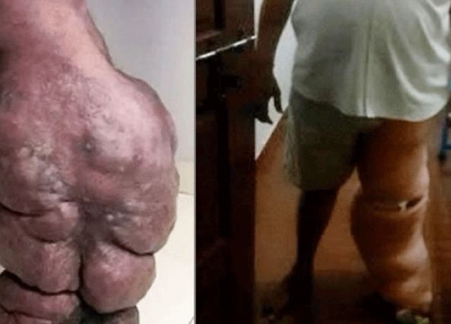 The swelling which began with a mosquito bite had left Chetan Pithadia with elephantitis.
