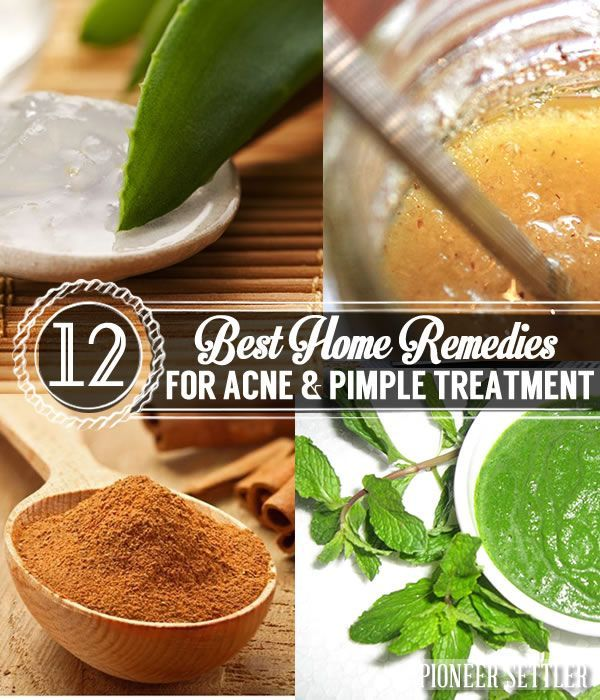 12 Best Home Remedies for Acne & Pimple Treatment | Homemade Natural Skincare and Beauty Products | Pioneer Settler | DIY Recipes and Tips for Natural Skincare and Beauty Products at pioneersettler.com