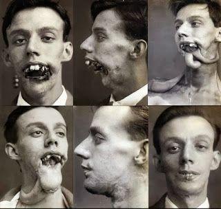 Harold Gilles WWI plastic surgery