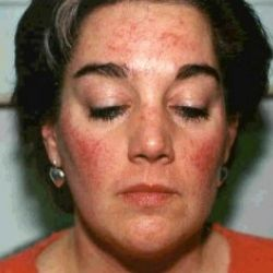 Diet Treatment For Rosacea - How To Treat Rosacea With Diet | Search Home Remedy