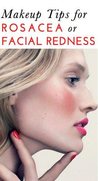 25 best ideas about rosacea makeup on pinterest rosacea. Black Bedroom Furniture Sets. Home Design Ideas