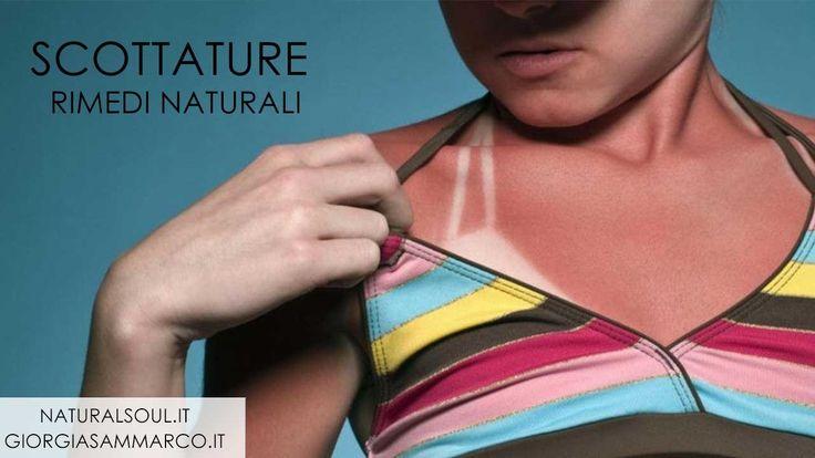 Rimedi naturali contro le scottature solari. #rimedinaturali #scottaturesolari