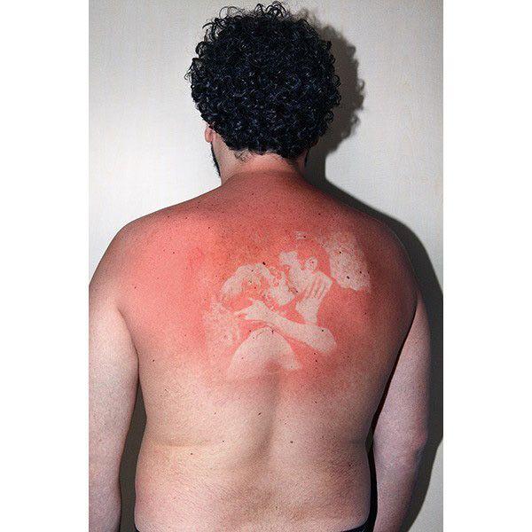 Kunst mit Sonnenbrand