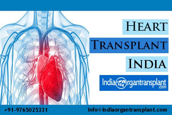 Successful Heart Transplantation Outcome With The Top Cardiac Hospitals Of India Heart Transplant Hospital Cardiac
