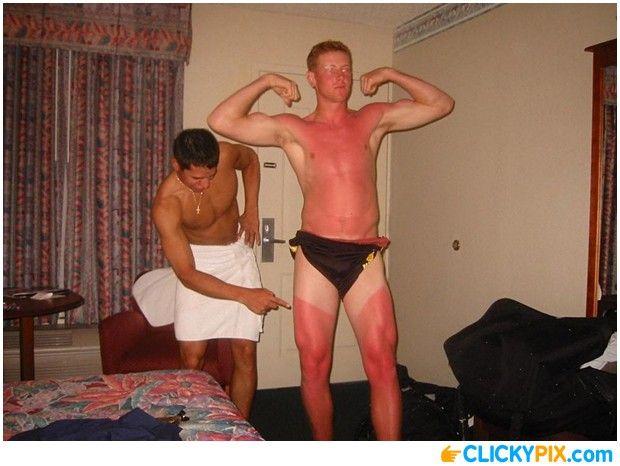 16 Horrible Sunburns