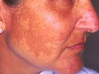 There are several known triggers for melasma. Sun exposure – this is the most important avoidable risk factor. Pregnancy may provoke melasma – in affected women, the pigment often fades a few months after delivery. Hormone treatments seem to be a factor in about a quarter of affected women, including oral contraceptive pills containing oestrogen and/or progesterone, hormone replacement, intrauterine devices and implants. But in other women, hormonal factors do not appear importa