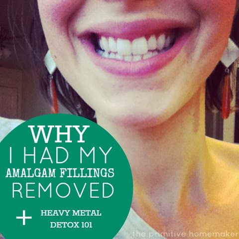 Why I Had My Amalgam Fillings Removed + Heavy Metal Detox 101 - The Primitive Homemaker