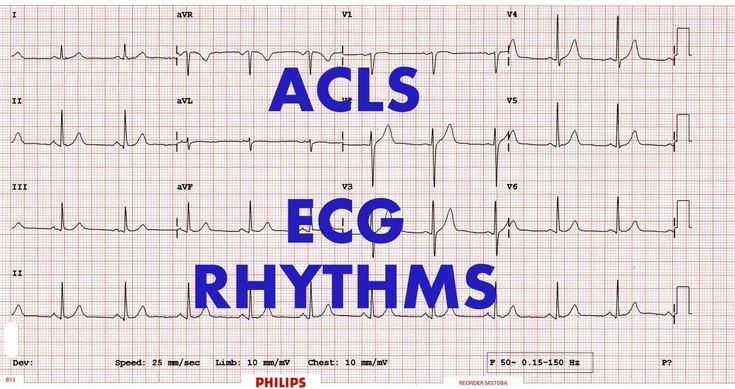 Acls rhythm study guide
