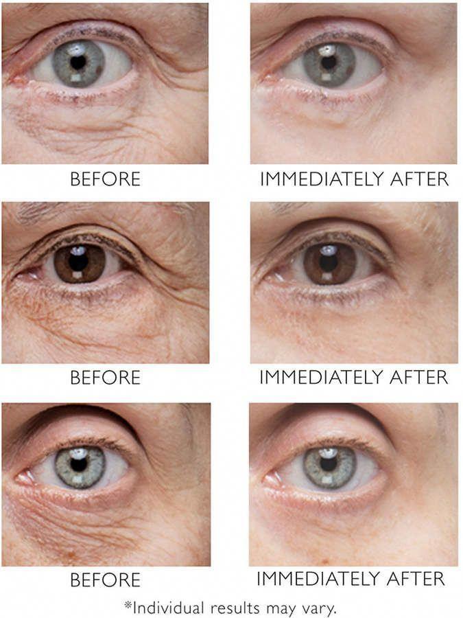 Eyelashesextensions In 2020 Undereye Under Eye Wrinkles Best Treatment For Wrinkles