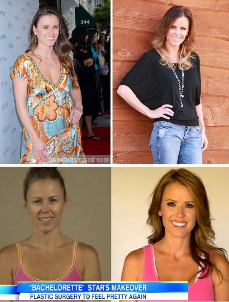 Trista Sutter reveals has had a blepharoplasty and a breast augmentation.
