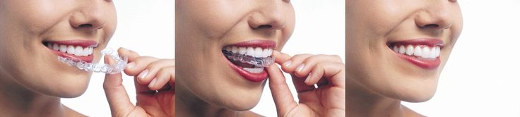 """Invisalign"" is a type of clear aligner used to straighten teeth.  The technology of aligning teeth using removable, plastic orthodontic appliances is not new."