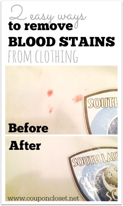 How to Remove Blood Stains from clothing with products you probably already have laying around.