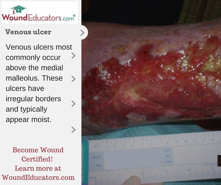 Pin by WoundEducators on Venous ulcers | Desktop, Beef ...