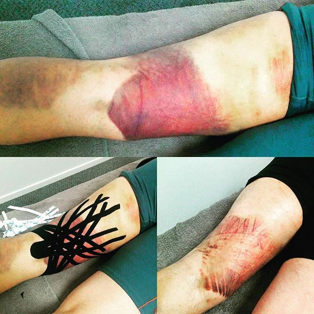 A Hamstring tear treated with @rocktapenz to reduce bruising and promote…