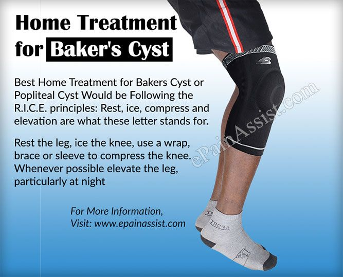 Bakers Cyst Or Popliteal Cystcausessymptomstreatmentexercisehome Treatment