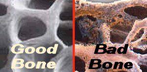Ile Witaminy C potrzebują nasze kości?