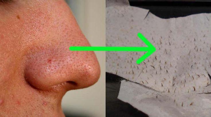 Livra-te de uma vez por todas dos pontos negros/cravos! Para isso apenas precisas de dois simples ingredientes, que quando combinados vão ser muito úteis para melhorar bastante a nossa pele e eliminar todas as impurezas!