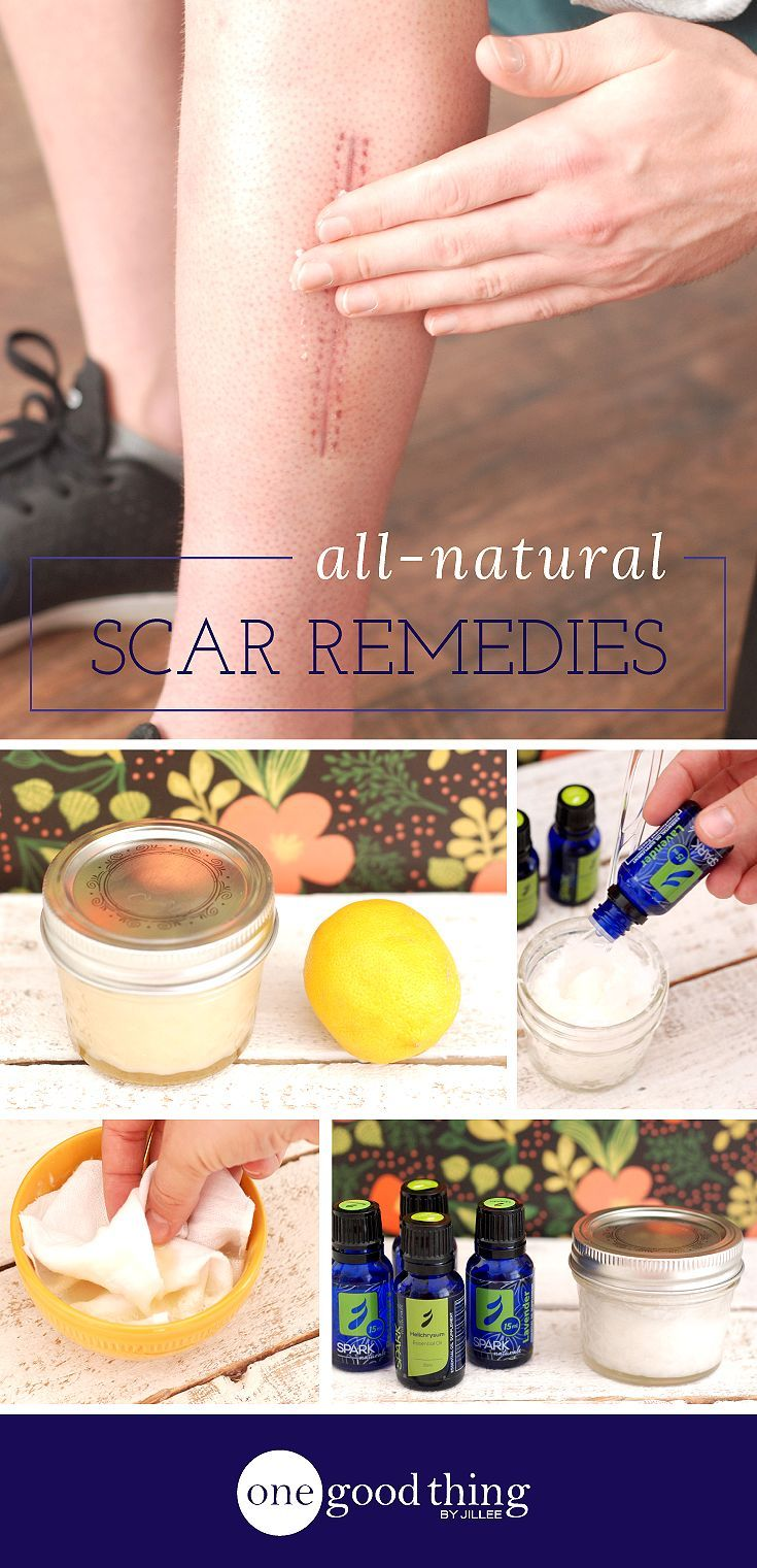 Whether they come from surgery, injury, or acne....scars are no fun! While the human body is capable of taking care of scars over time, to speed up healing, try these simple home remedies to remove scars naturally.