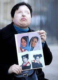 http://www.factpinger.org/2013/07/must-knowthe-story-of-ameneh-bahrami.html