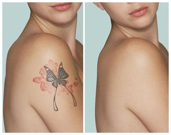 Tattoo Removal Before And After Eliminaciondetatuajes