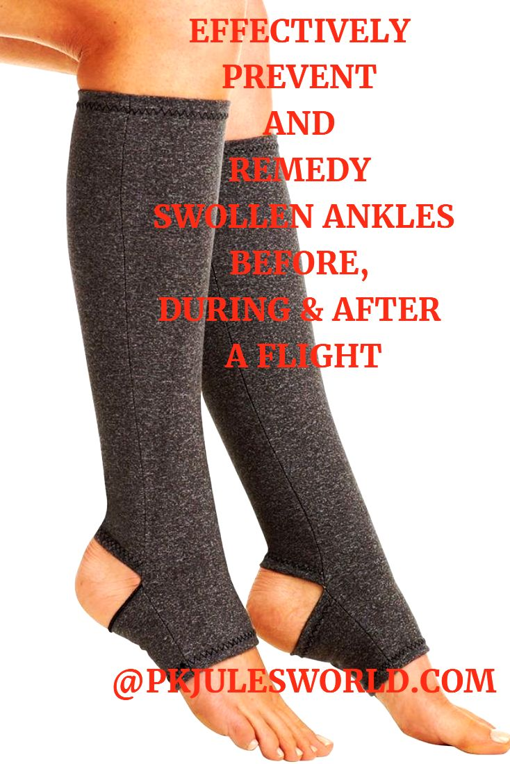 14 tips to Survive swollen ankles during a flight! Grab your super soft Compression Socks to reduce swelling #travelwellness #traveltips