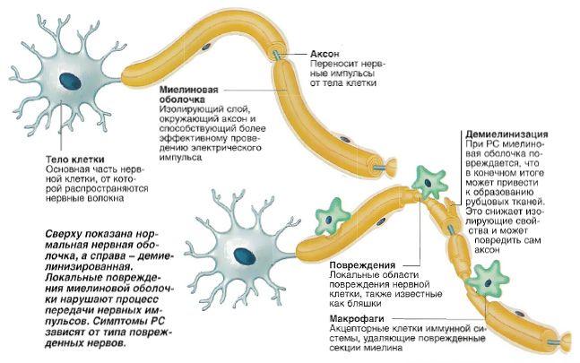 Рассеянный склероз - причины и симптомы : Лечение : Здоровье : Subscribe.Ru