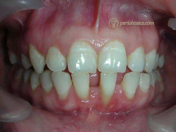 0150439b831f0a5ed211212df0ce084f - How To Get Rid Of Black Stains On Your Teeth