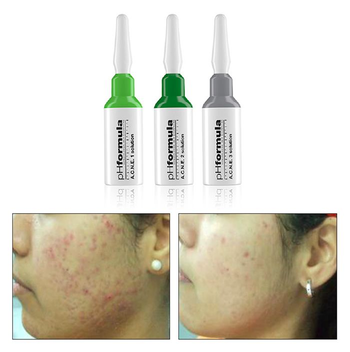 The unique combination of actives in the pHformula A.C.N.E. solutions was specifically formulated to correct the main acneic manifestations such as comedones, papules and pustules. It was designed to act on the 4 factors that trigger acne.  1. Seborrhoea  2. Hyperkeratinisation  3. Microbial colonisation (P acnes)  4. Inflammation