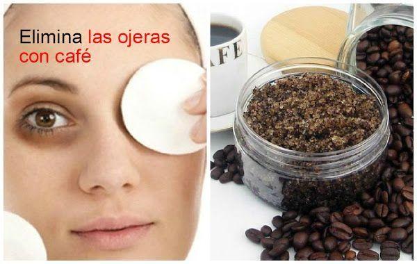 Si quieres decir adiós a las ojeras, ¡apunta este remedio casero de BELLEZA Y PEINADOS!