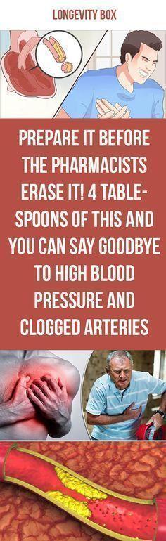 Best 25+ High blood pressure chart ideas on Pinterest Blood - blood pressure chart