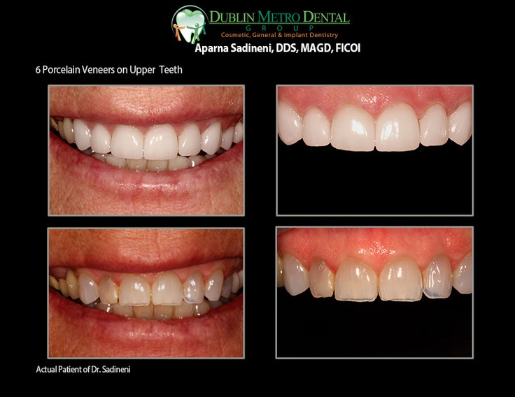 6 Porcelain Veneers on Upper Front Teeth. She was unhappy ...