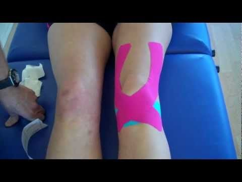 How to apply Kinesiology Taping for Knee Pain - Patella tendonitis and P...