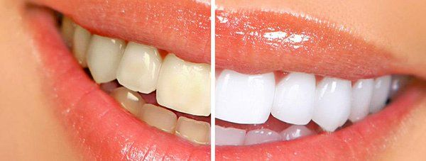 Las Vegas Zoom Teeth Whitening provided by Dentist Dr. Kevin. If you have any problem in teeth, please contact at ABC Dental Care today!