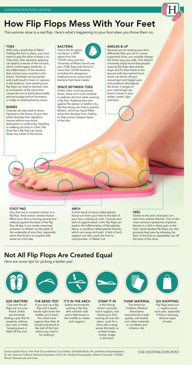 Knee pain diagnosis chart - Flip Flops Can Mess With Your Feet This Infographic From The Huffington Post Is Spot