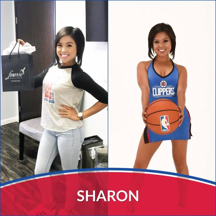 Another happy LA Clippers Spirit dancer, Sharon, came by our Finesse office in Newport Beach for laser hair removal!
