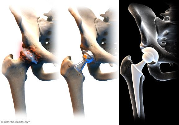 17 To-Do Items Before Hip Replacement Surgery