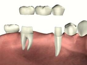 How to Clean Under a Dental Bridge