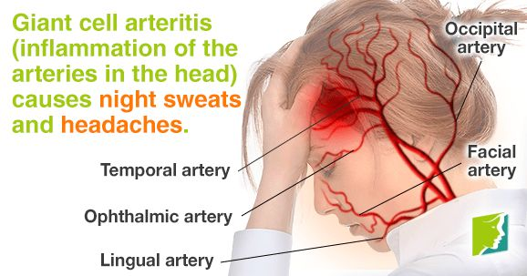Giant cell arteritis - inflammation of the arteries in the head - causes night sweats and headaches.