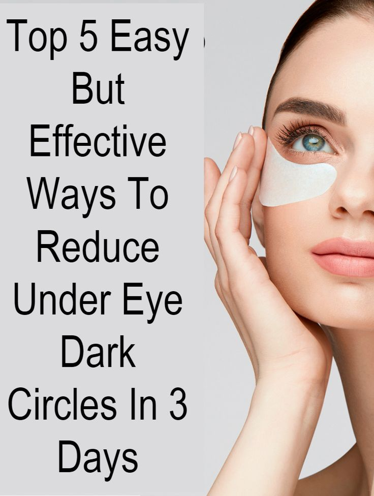 Dark discoloration of skin under the eyes is referred as ...