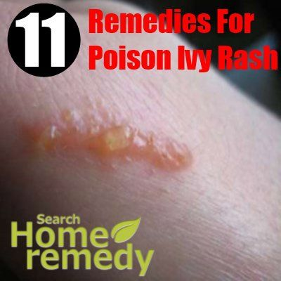 Home Remedies For Poison Ivy Rash