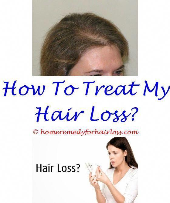 Alopecia Areata Home Treatment In Hindi | Flisol Home