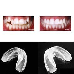 Get the naturally straight, beautiful teeth you have always wanted with this device. This orthodontic teeth straightening system will get your teeth in tip top shape when you add the moulds to your te