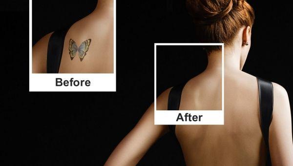 Η ΑΠΟΚΑΛΥΨΗ ΤΟΥ ΕΝΑΤΟΥ ΚΥΜΑΤΟΣ: Τατουάζ: Πώς να αφαιρέσετε κάποιο με ασφάλεια για ...