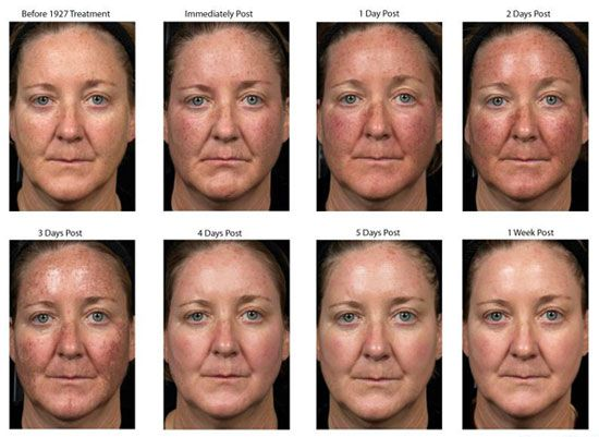 46 Best Melasma Hyperpigmentation Images On Pinterest