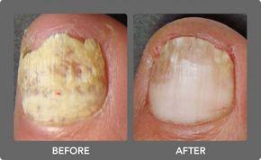 Hongos en las uñas, también conocida como onicomicosis incluye la inflamación, el dolor, la hinchazón del dedo del pie, color amarillento, engrosamiento, y el desmoronamiento de la uña. Esta condición se produce debido a un pH anormal de la piel, la exposición de humedad frecuente, el uso de calcetines sintéticos, baja las defensas, la acumulación …